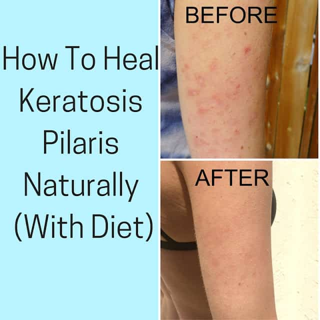 An image of before and after photos of keratosis pilaris, after treating it with diet