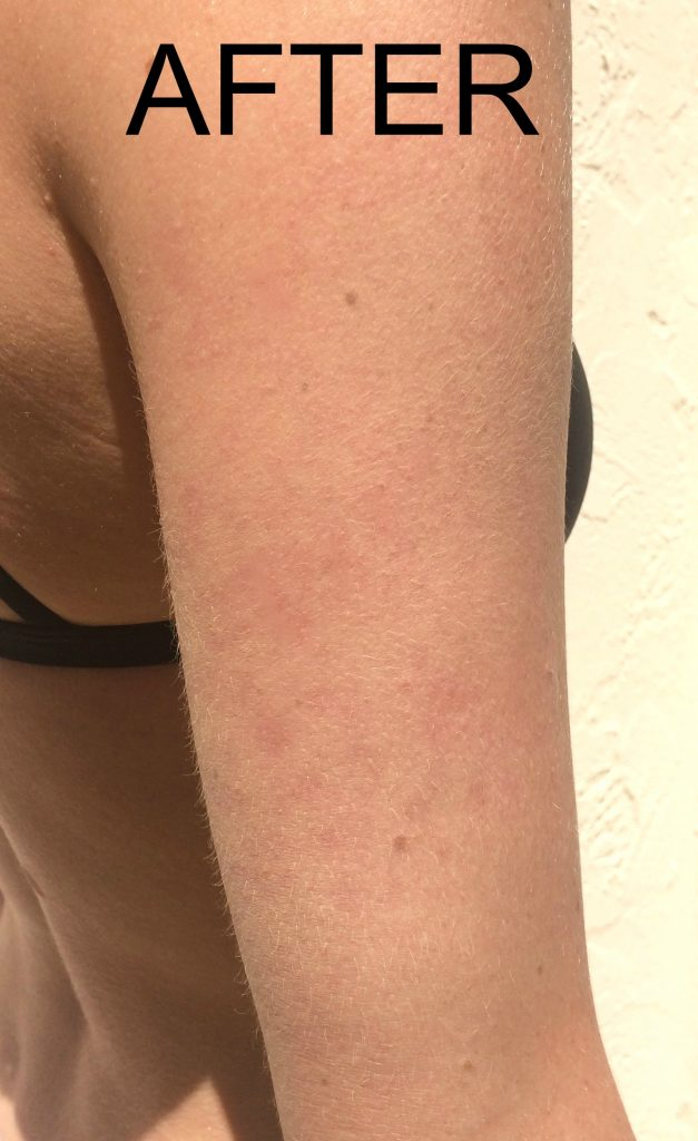 An after photo of keratosis pilaris on an arm.
