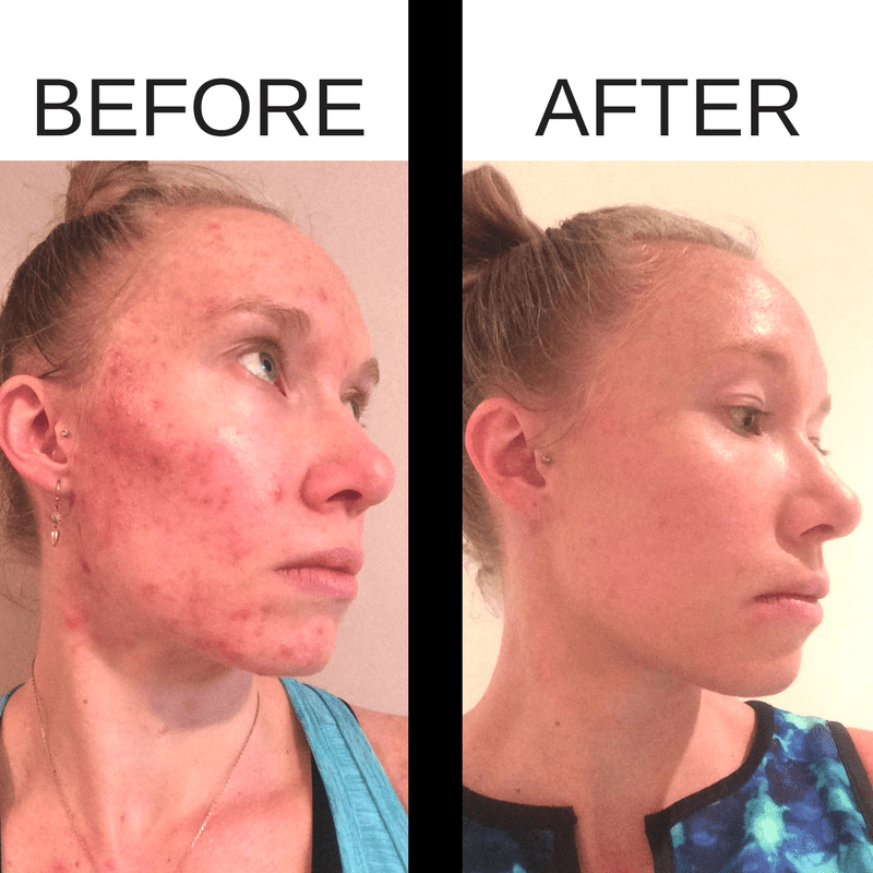Before and after acne photos after using Beautycounter products