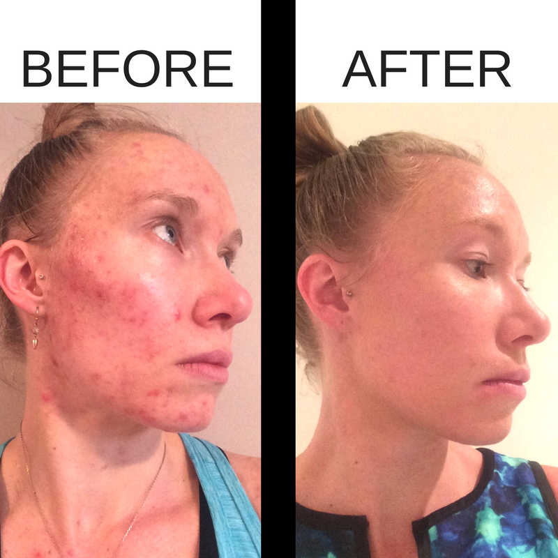Before and after photos from using the Beautycounter charcoal mask for acne