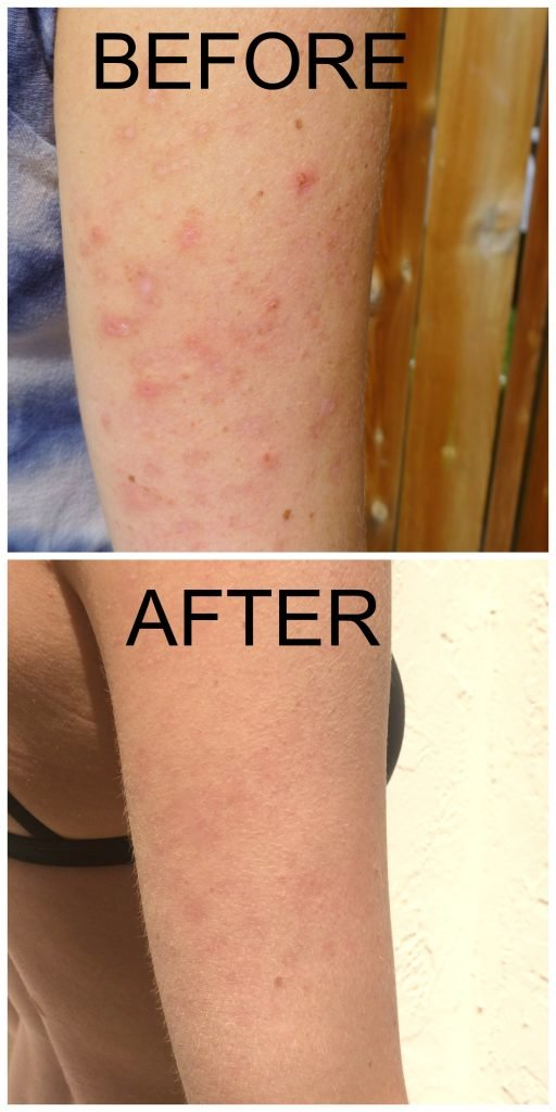 Before and after photos of arms with Keratosis Pilaris