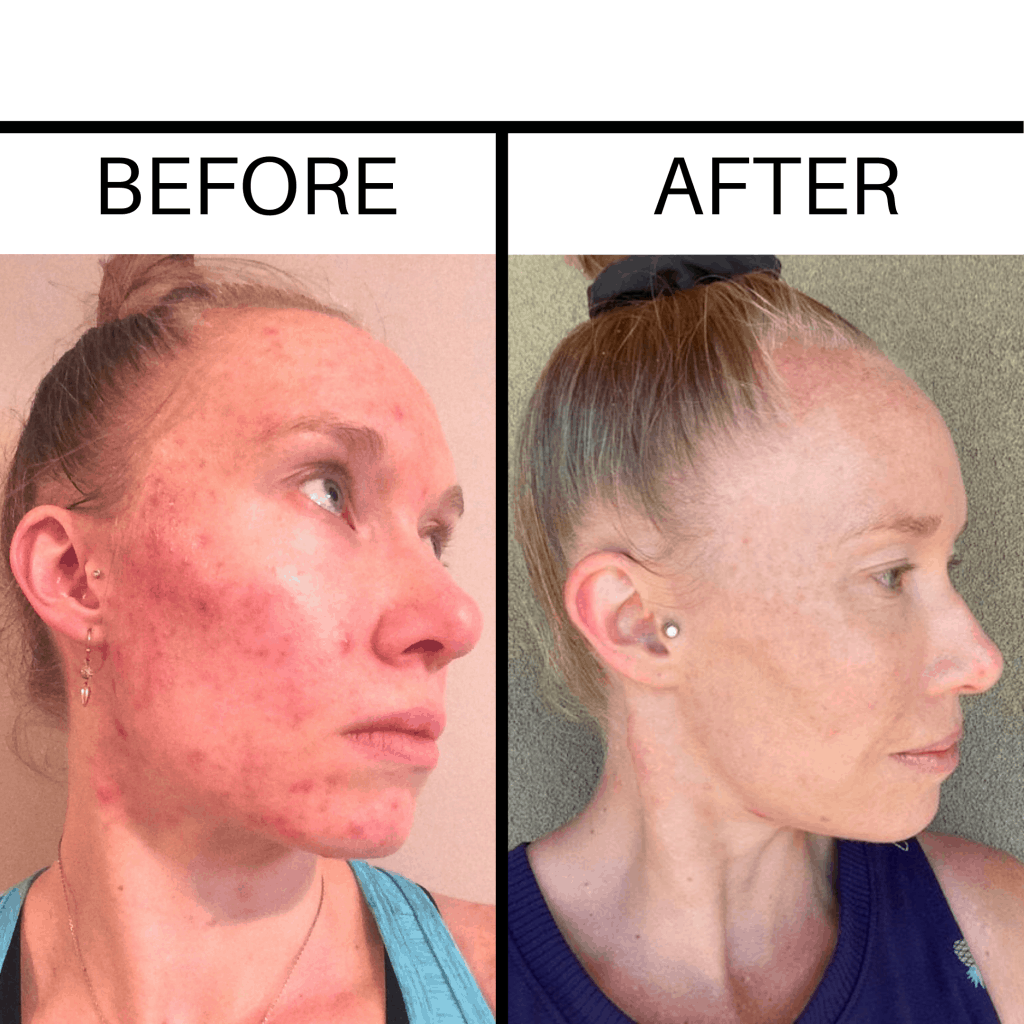 A girl with before and after photos of acne and clear skin