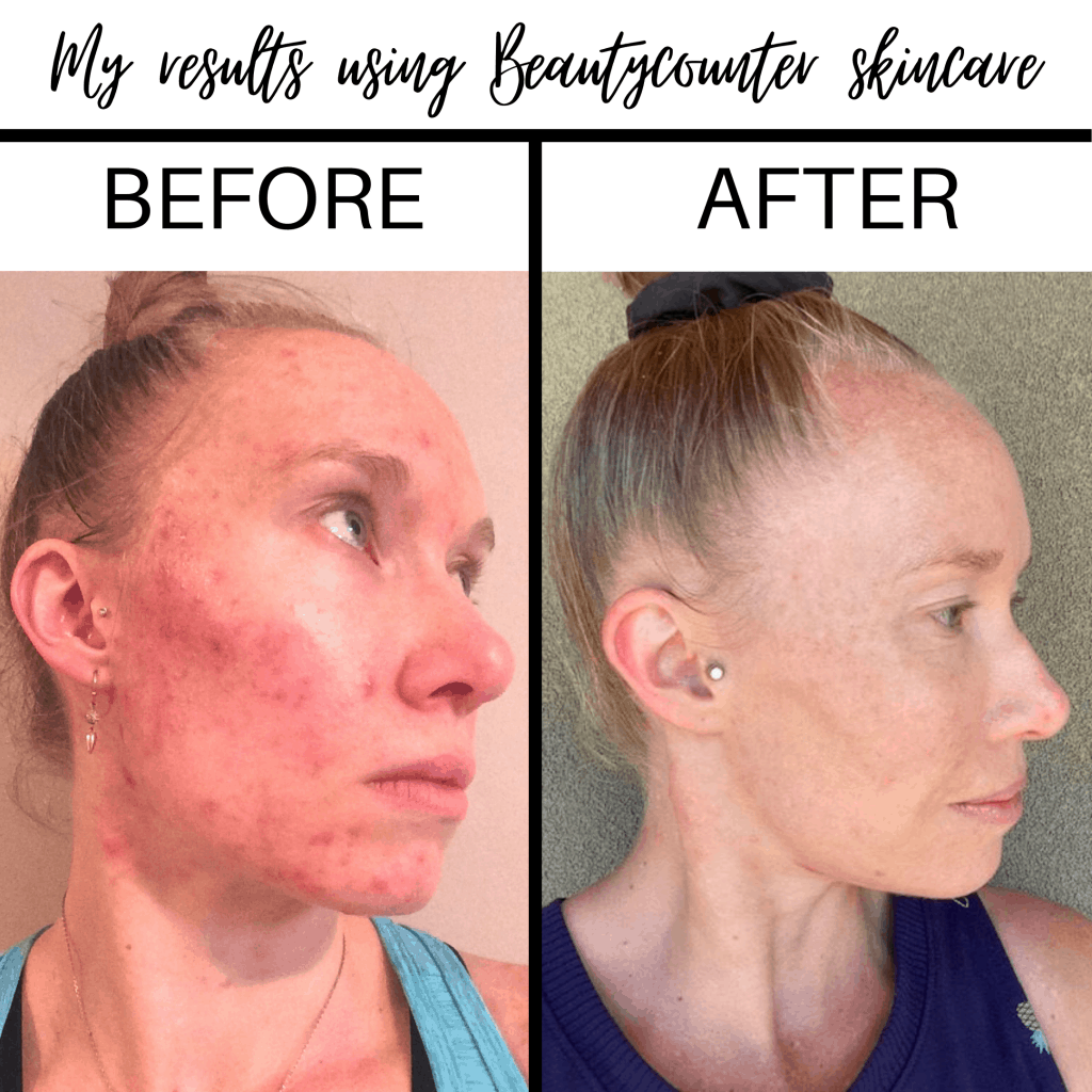 Before and After photos of using Beautycounter products for acne